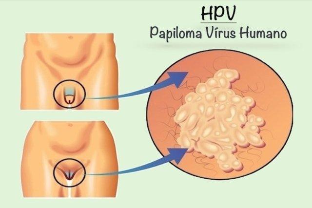 hpv verruga genital tratamento cancer sigmoidian simptome