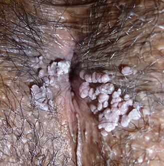 Cât timp trăiesc cu cancer de prostată la 4 grade