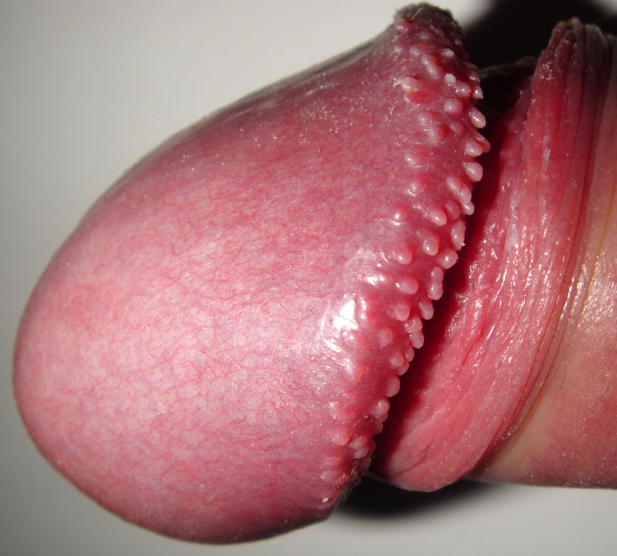 papilloma vestibular adalah ombladon panarame