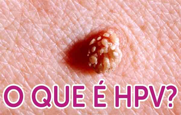 papiloma virus humano transmision percent hpv causes cervical cancer