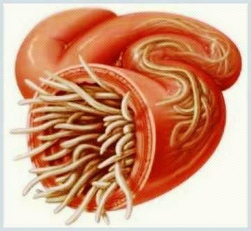 homeopatie paraziti intestinali