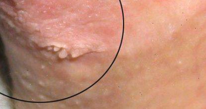 papillomavirus oireet sintomas de hpv en ano
