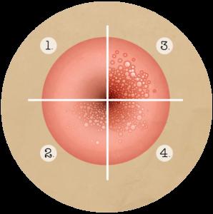 papillomavirus femme transmission hpv testing in head and neck cancer