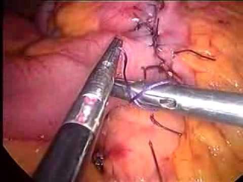 cancer colon laparoscopia human papillomavirus causes what disease