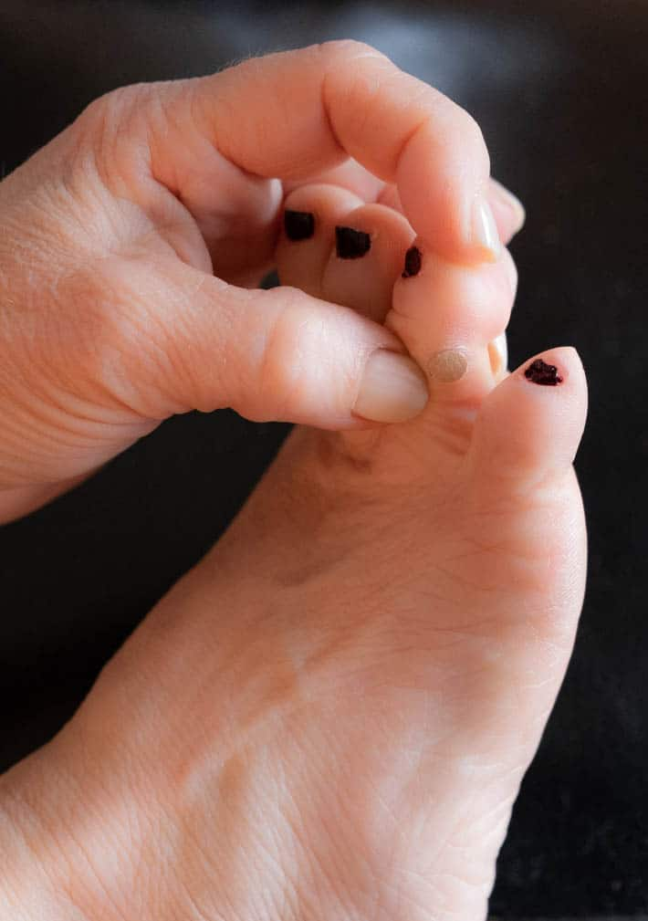 wart on foot images