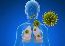 imunoterapie cancer pulmonar cu celule mici papilloma invertito sintomi
