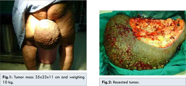 fibroepithelial papilloma breast