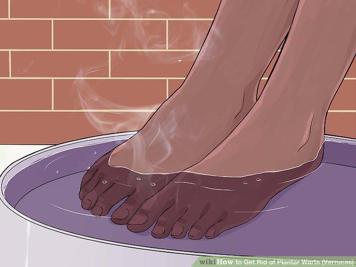 foot warts get rid of