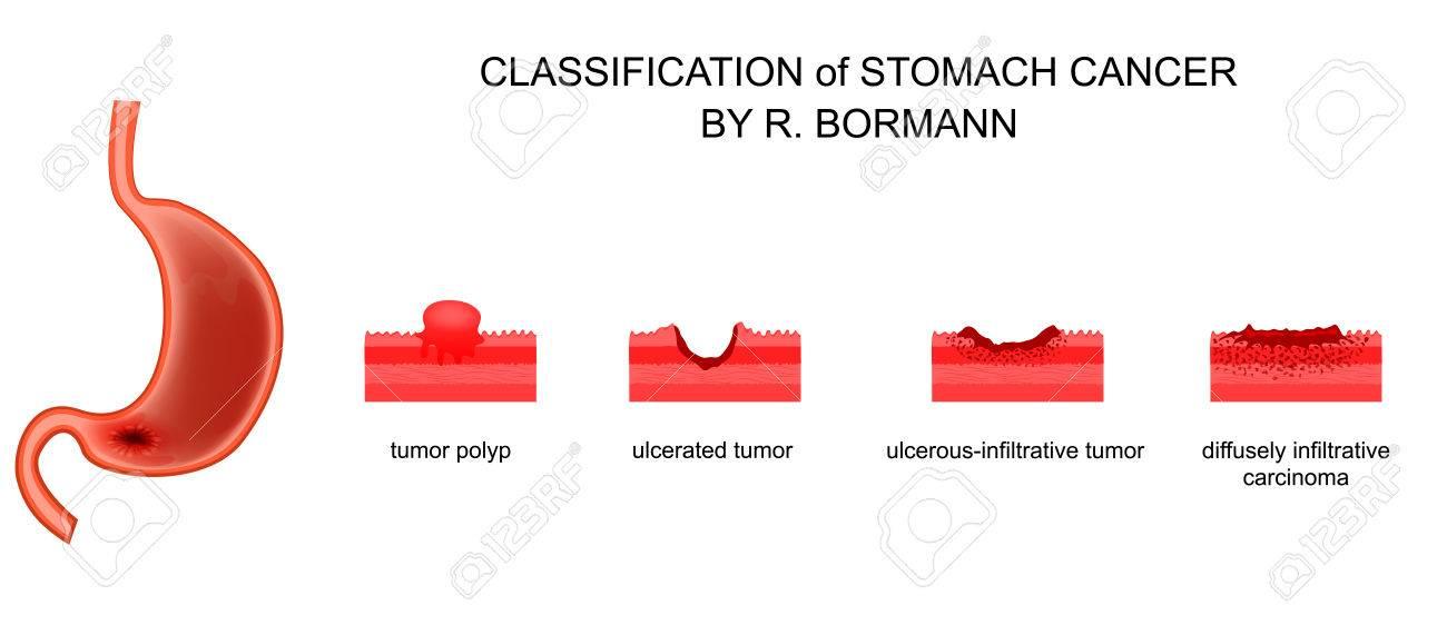 Transformarea malignă a ulcerului gastric