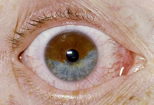genetic cancer of the eye