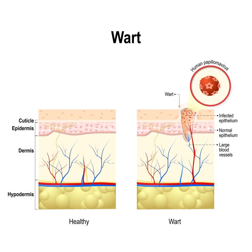 genital warts and cervical cancer symptoms