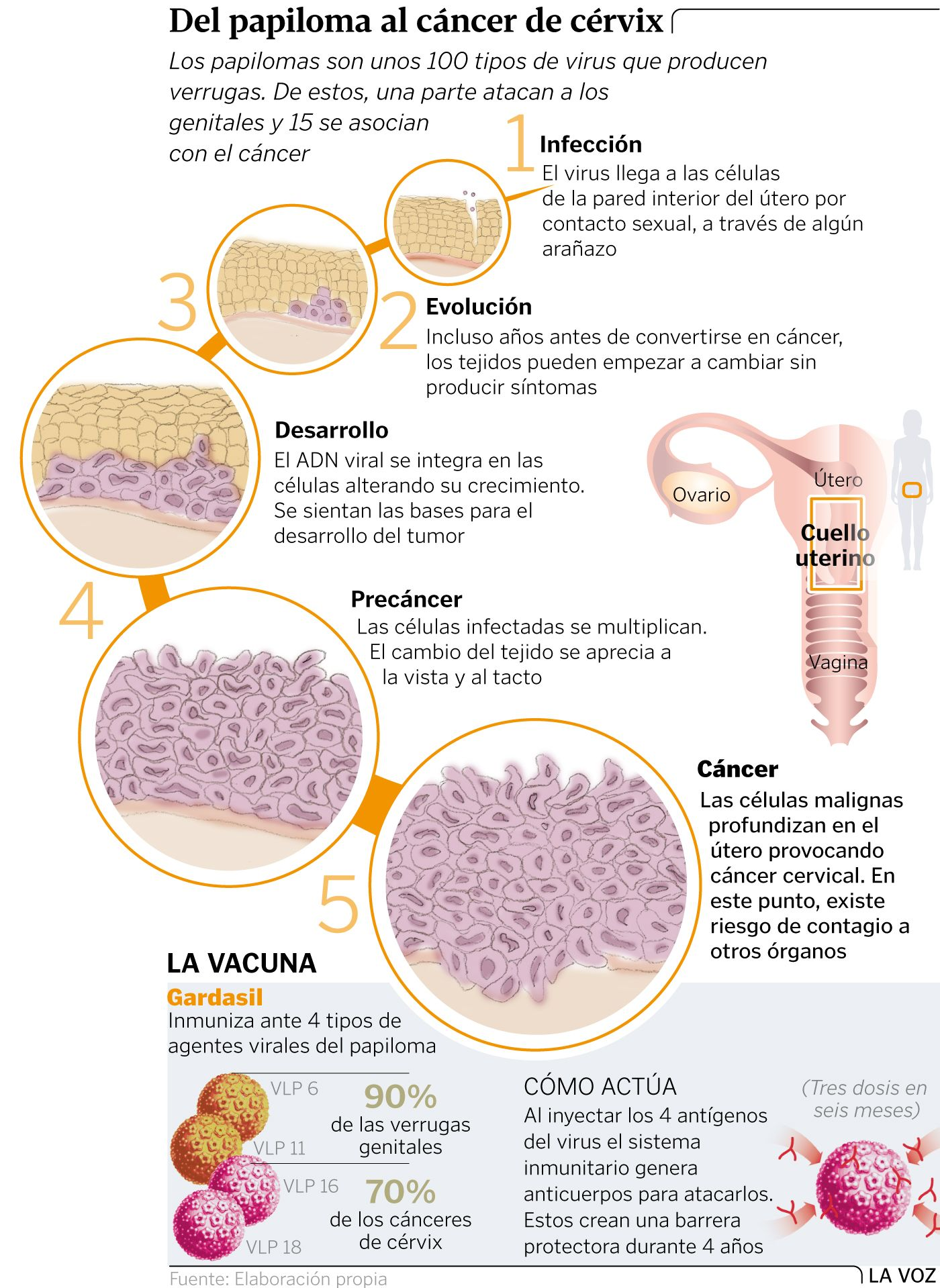 ginecologia virus papiloma humano