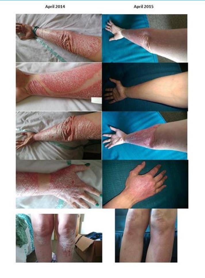 helminthic therapy personal stories papillomavirus in gura