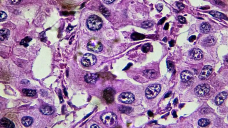 enterobius vermicularis larvae morphology cancer pulmonar ganglioni