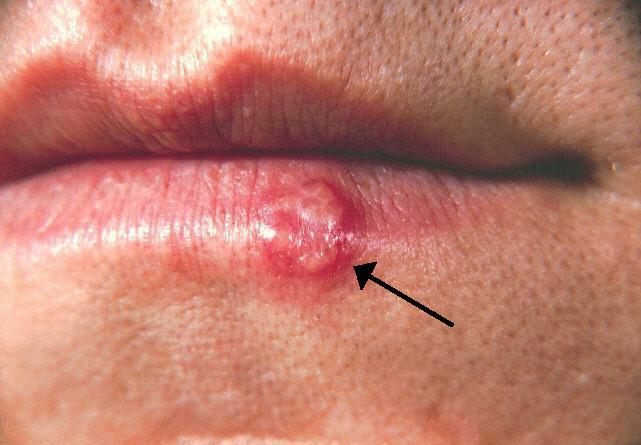 herpes genital y papiloma detoxifiere cu zer