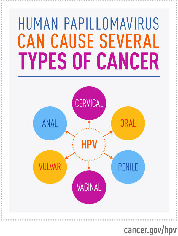 hpv and cancer male colon cancer intestinal blockage