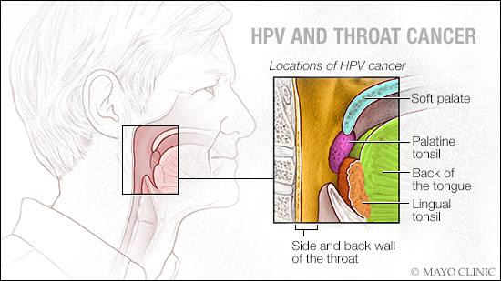 human papillomavirus (hpv) especially strains 16 and 18