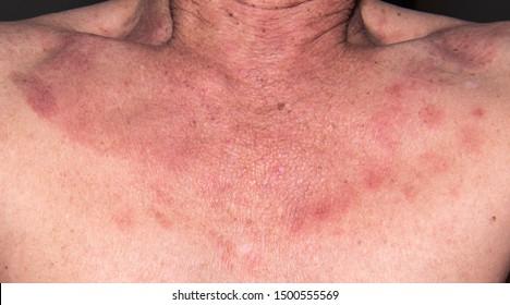 hpv blotchy skin viermi intestinali in scaun