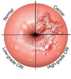 virus papiloma en mujeres oxiuros tratamento mebendazol