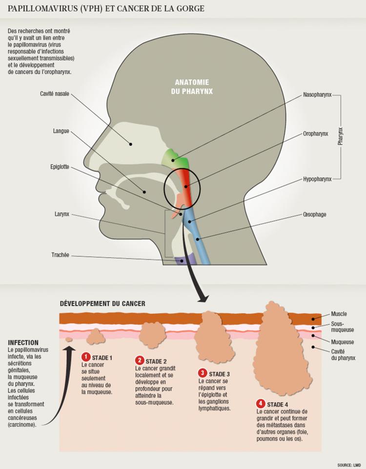 hpv cancer de la gorge vaccino per i papilloma virus