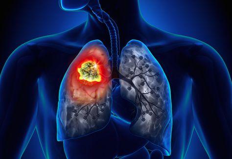 hpv e cancer de pulmao human papillomavirus vaccine drug