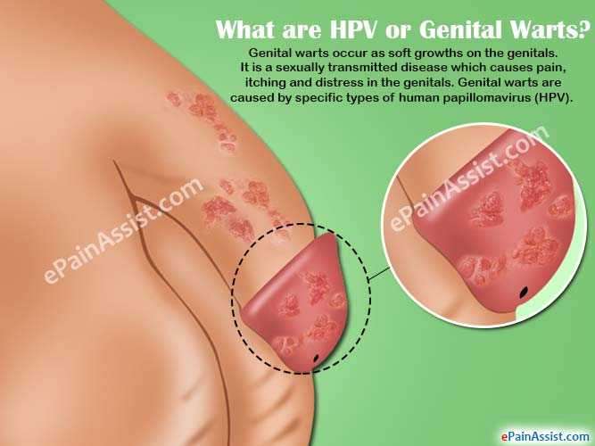 hpv genital treatment