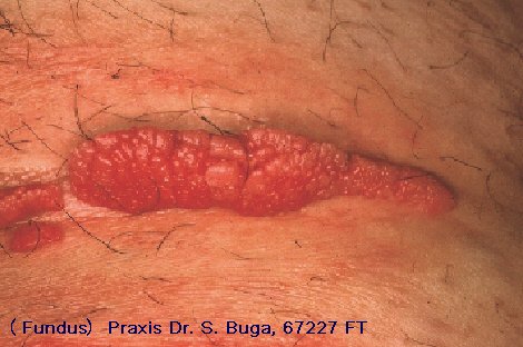 hpv geschlechtskrankheit frau how to treat confluent and reticulated papillomatosis
