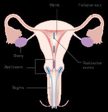 hpv high risk symptome cancer de prostata tratamento