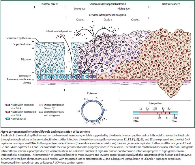 vestibular papillomatosis surgery laryngeal papillomatosis in neonates