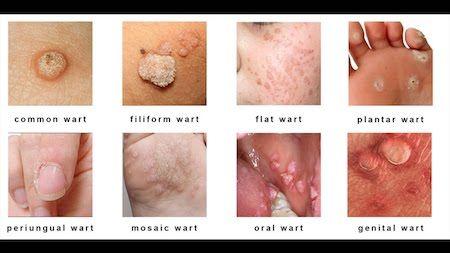 hpv how to remove warts tratament virusul papiloma uman generalitati