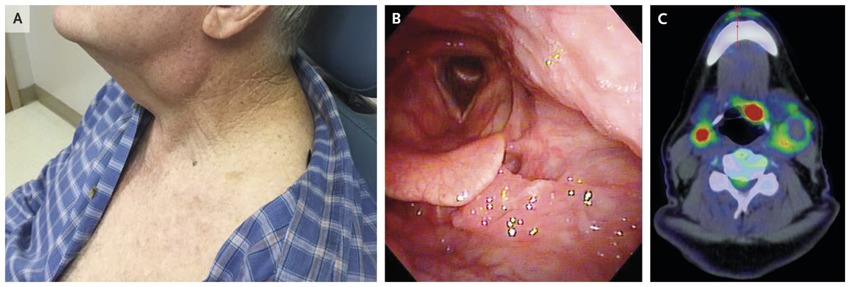 hpv in nose