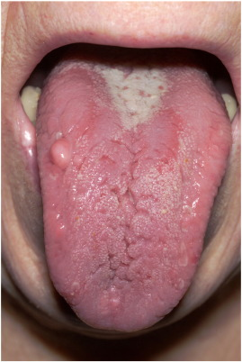 hpv lingua cause