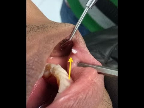 hpv mouth warts treatment
