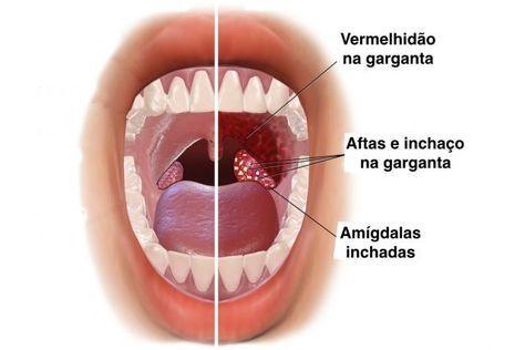 papiloma laringeo en cuerdas vocales