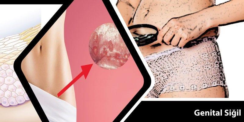 hpv nedir tedavisi nelerdir hpv that causes warts