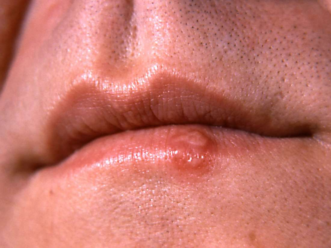 hpv on mouth lips