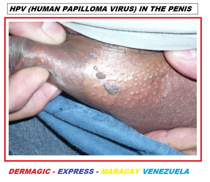 hpv or human papilloma virus virus papiloma humano paper