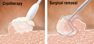 hpv removal surgery