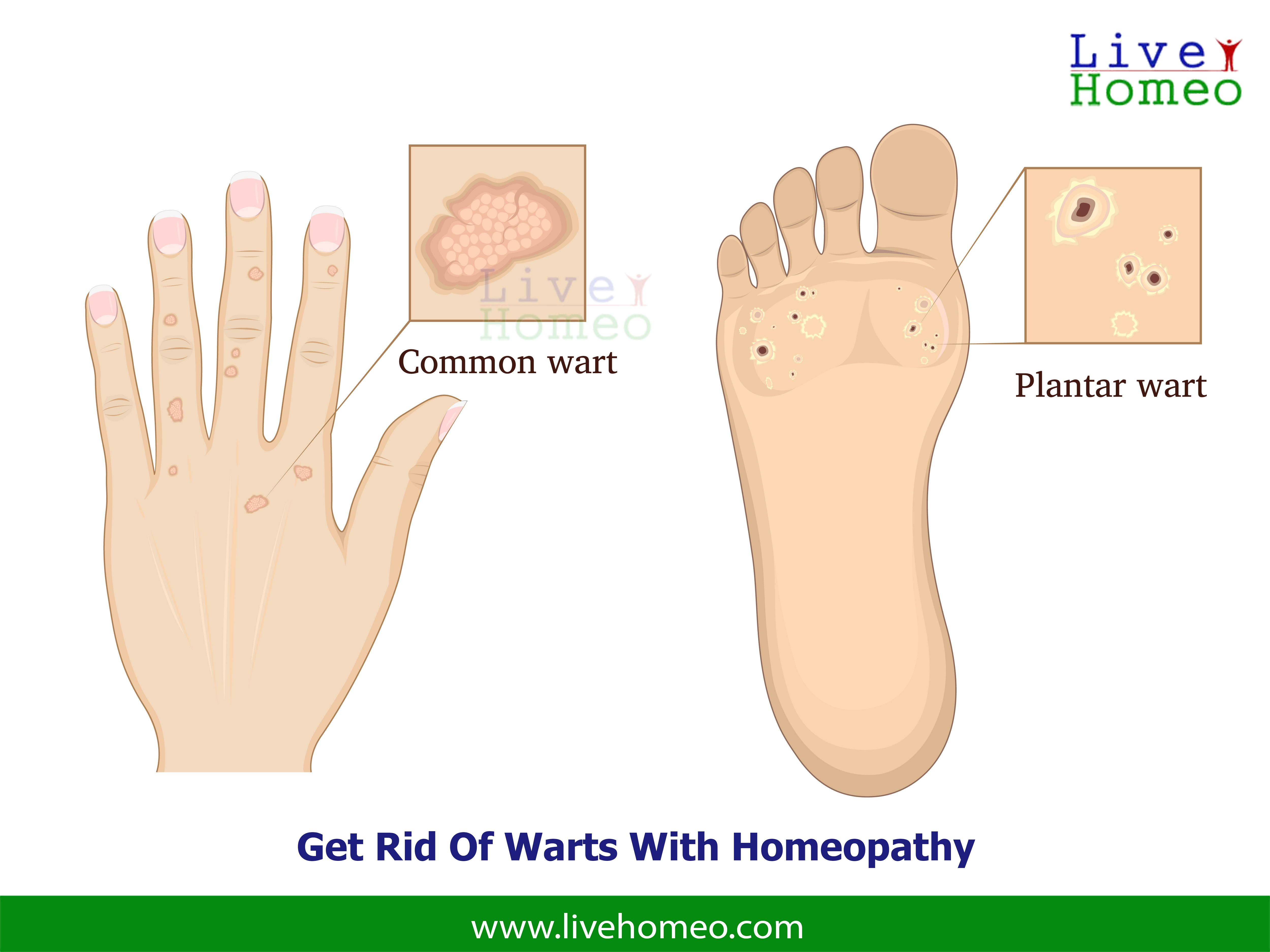 hpv treatment in homeopathy