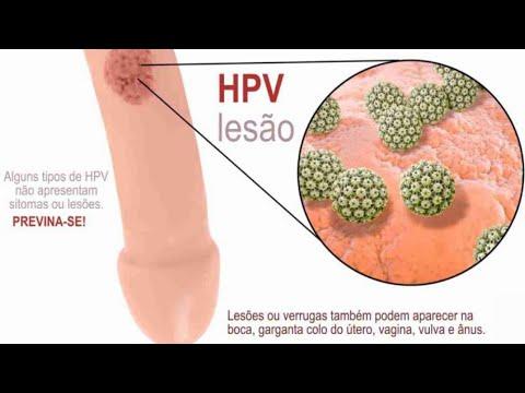 hpv virus no homem