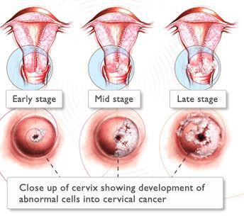 hpv virus symptoms in females
