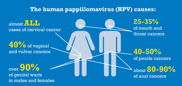 hpv virus zonder wratten papillomavirus in lung cancer