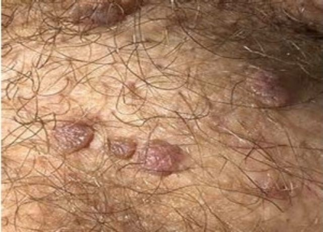 ht 2 toxin cancer endometrial nccn