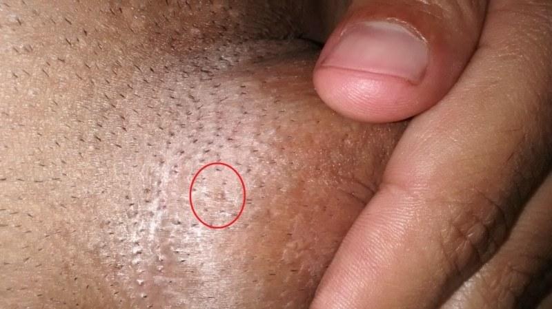 hpv warts buttocks