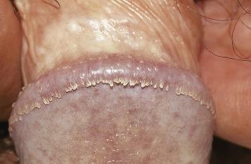 human hpv genital warts
