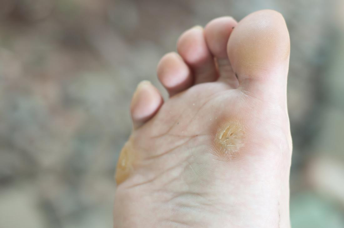 human papilloma virus that causes plantar warts