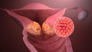 human papillomavirus infection spread