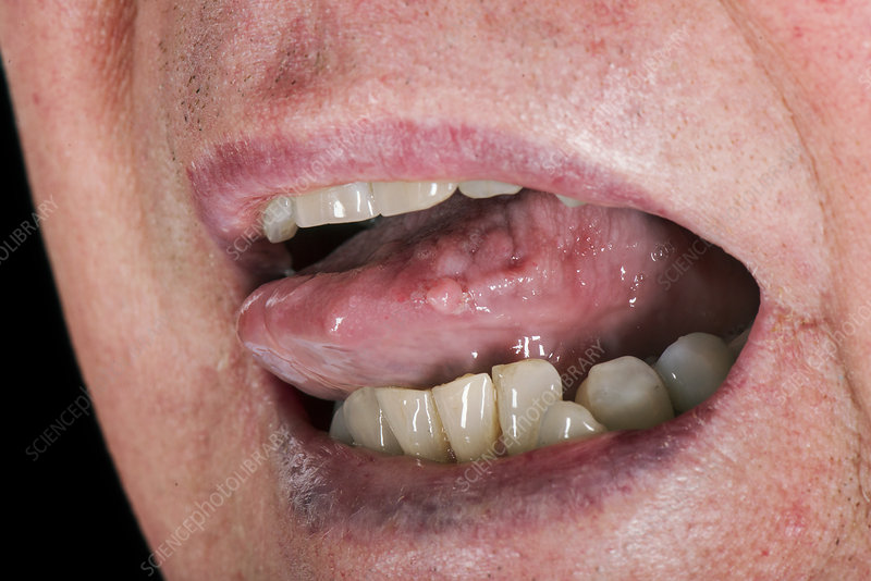 human papillomavirus on the tongue