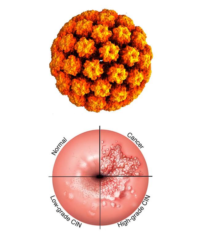 human papillomavirus symptoms female hpv non cancer strain