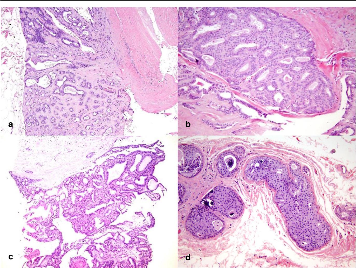 intraductal papilloma core biopsy